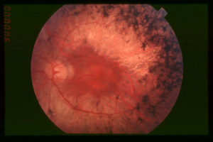 Fundus_of_patient_with_retinitis_pigmentosa,_mid_stage